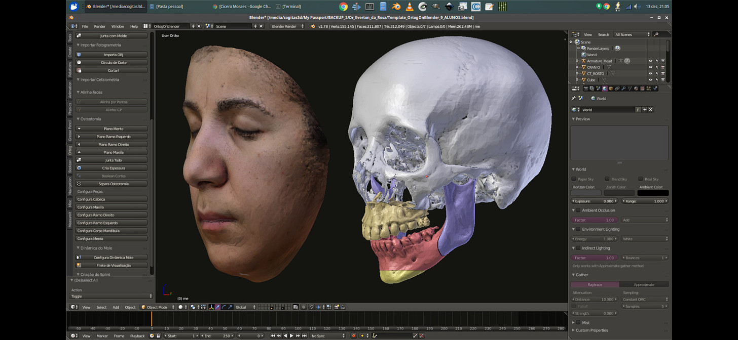 Linux 3DCS - surgical planning in your hand - BlenderNation