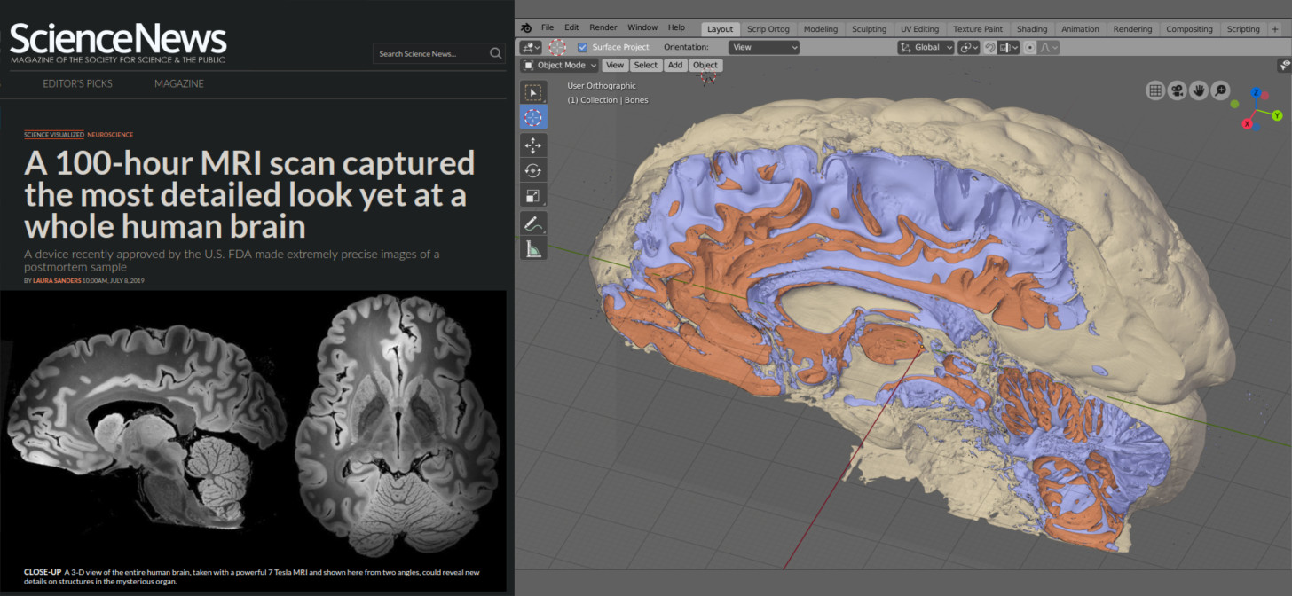 Converting Video if a Brain MRI Scan to a Mesh in Blender